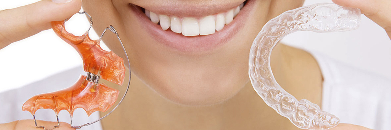 Ортодонтия. Исправление прикуса в Твери