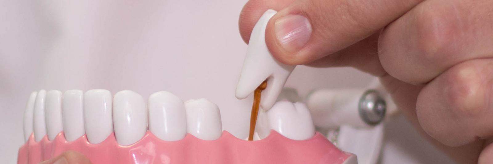 Протезирование имплантация зубы тверь